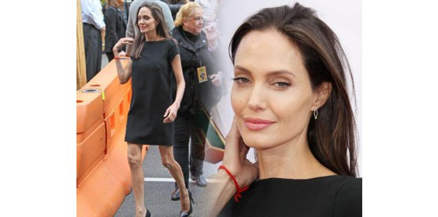 Angelina Jolie eriyor! İşte hastalığı