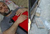Sultangazi'de kafasına beton parçası düştü ölümden döndü